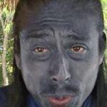 テレ朝の友寄隆英ディレクターの肌や顔のその後を調査!嫁の反応は?